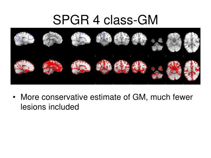 SPGR 4 class-GM