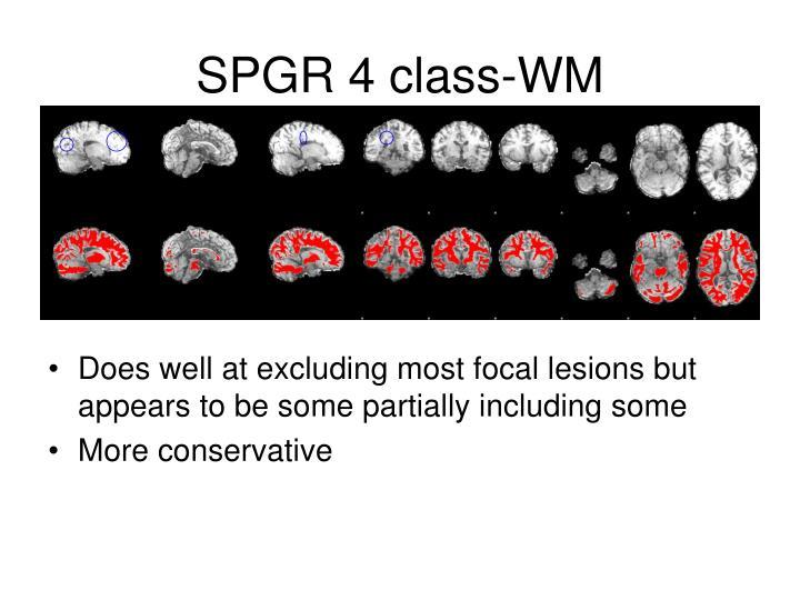 SPGR 4 class-WM