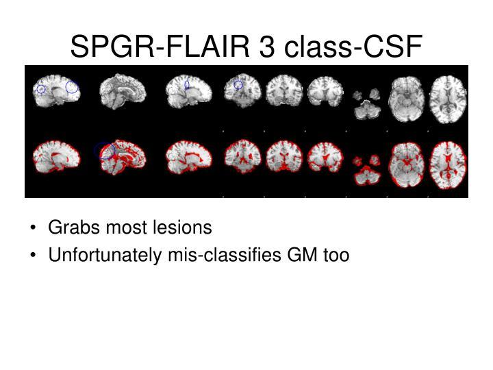 SPGR-FLAIR 3 class-CSF