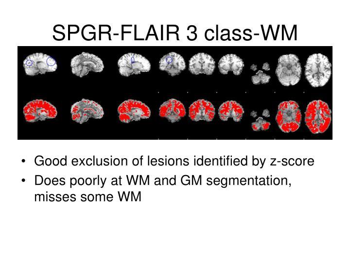 SPGR-FLAIR 3 class-WM