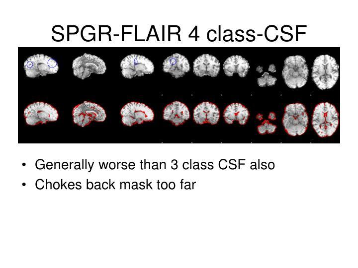 SPGR-FLAIR 4 class-CSF
