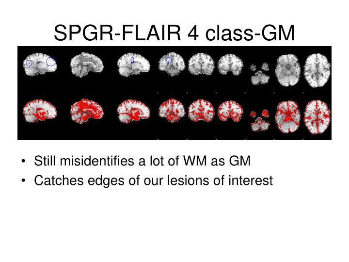 SPGR-FLAIR 4 class-GM