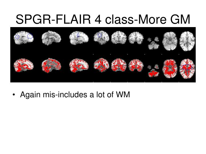 SPGR-FLAIR 4 class-More GM
