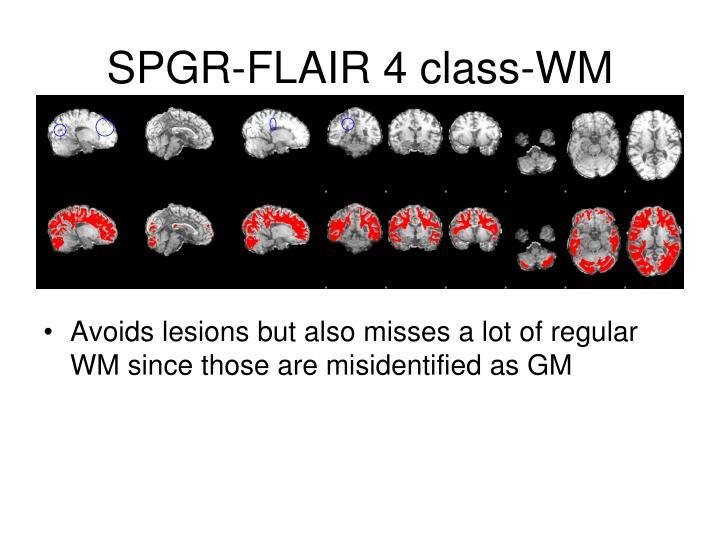 SPGR-FLAIR 4 class-WM