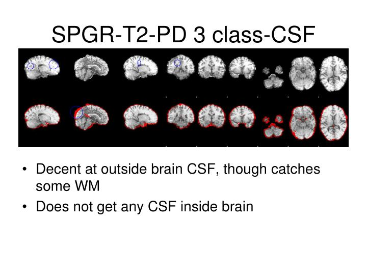 SPGR-T2-PD 3 class-CSF