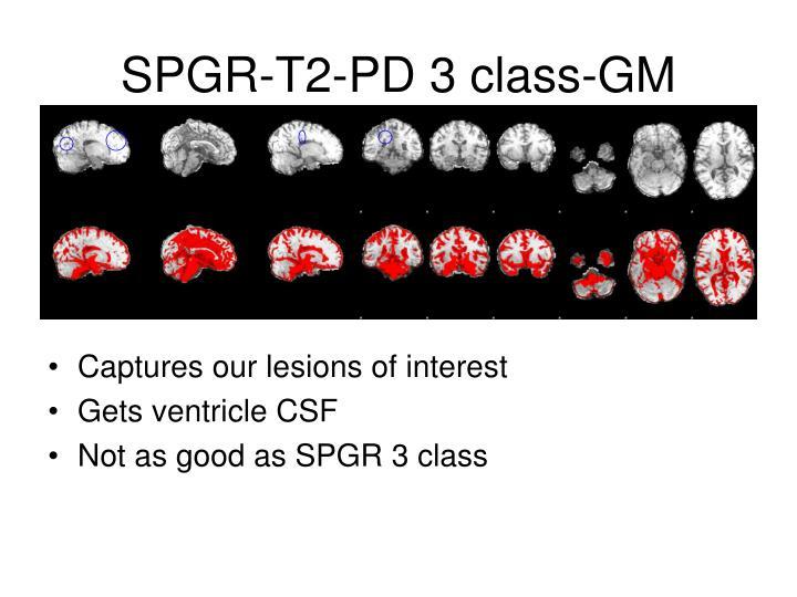 SPGR-T2-PD 3 class-GM