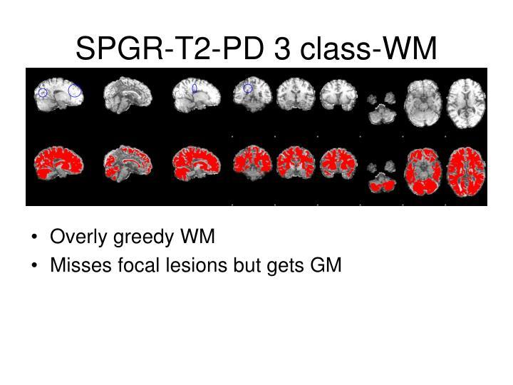 SPGR-T2-PD 3 class-WM