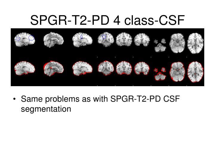 SPGR-T2-PD 4 class-CSF