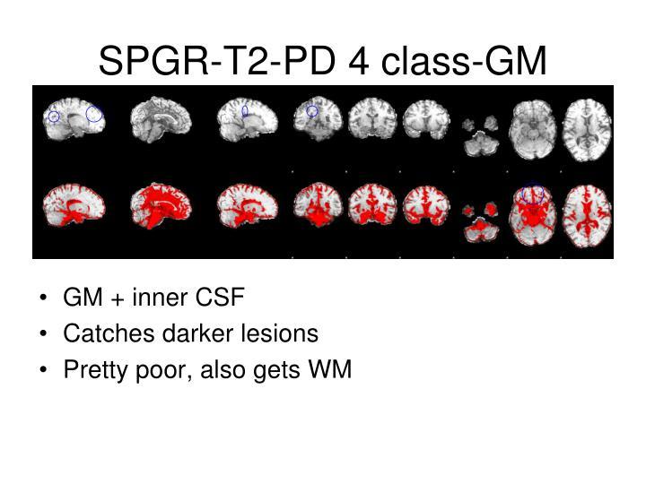 SPGR-T2-PD 4 class-GM