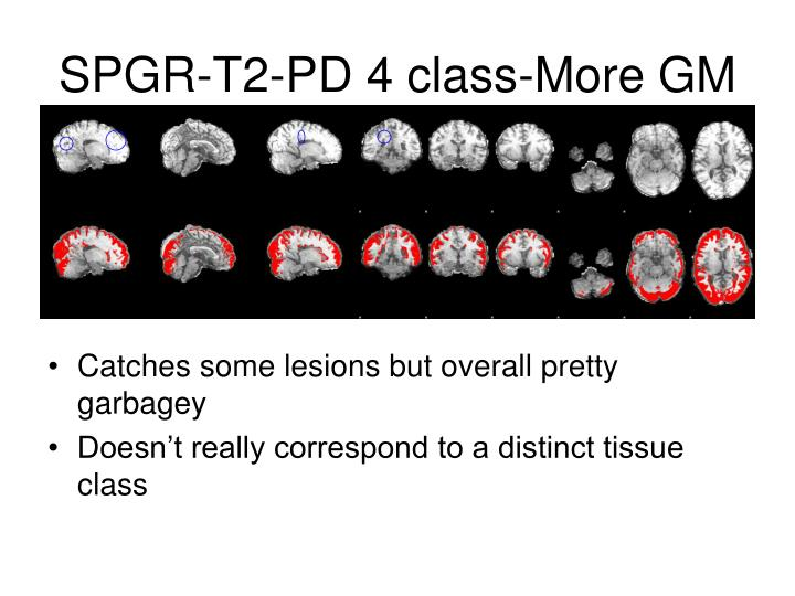 SPGR-T2-PD 4 class-More GM