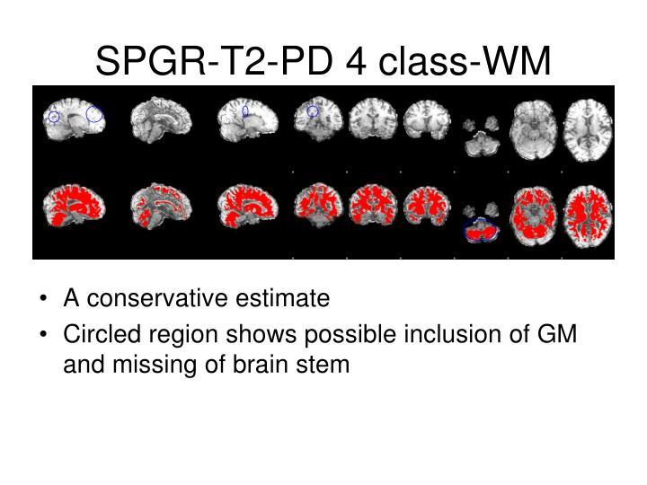 SPGR-T2-PD 4 class-WM