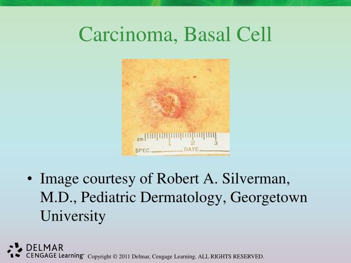 Carcinoma, Basal Cell