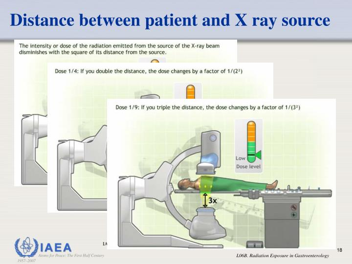 Distance between patient and X ray source