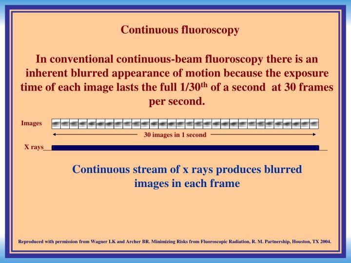 Continuous fluoroscopy