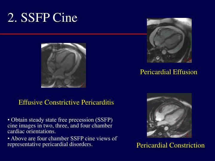 2. SSFP Cine