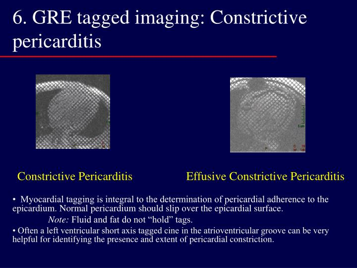 6. GRE tagged imaging: Constrictive pericarditis