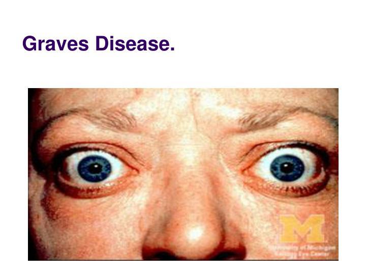 Graves Disease.