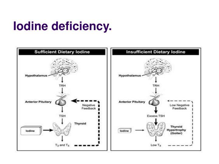 Iodine deficiency.