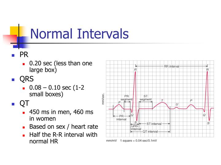 ppt ekg interpretation powerpoint presentation id 3221637