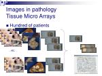 images in pathology tissue micro arrays