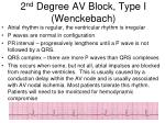 2 nd degree av block type i wenckebach
