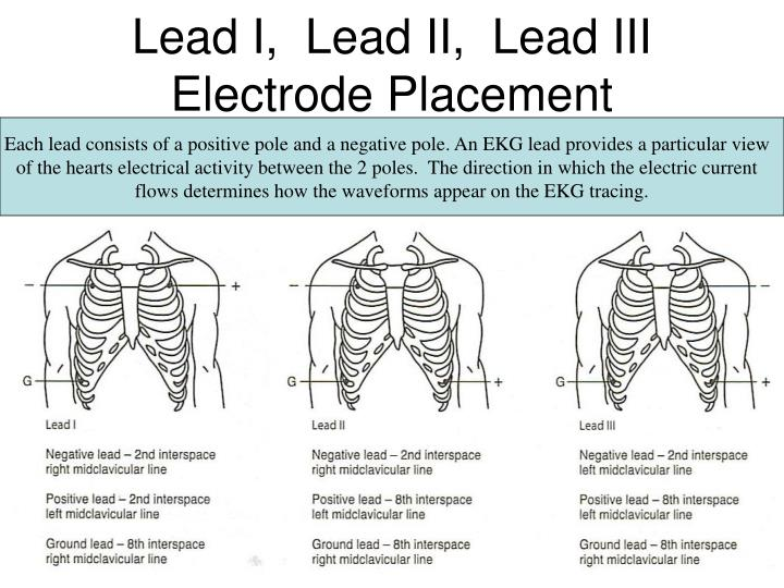 Lead I,  Lead II,  Lead III  Electrode Placement