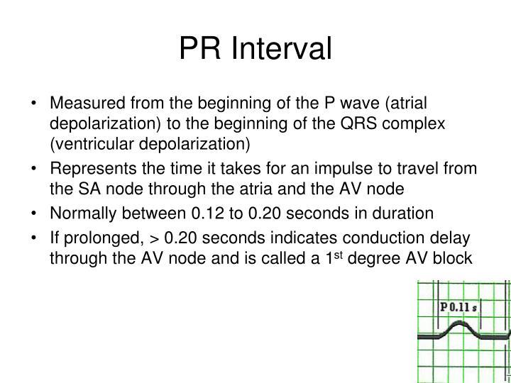 PR Interval