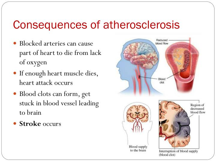 Consequences of atherosclerosis