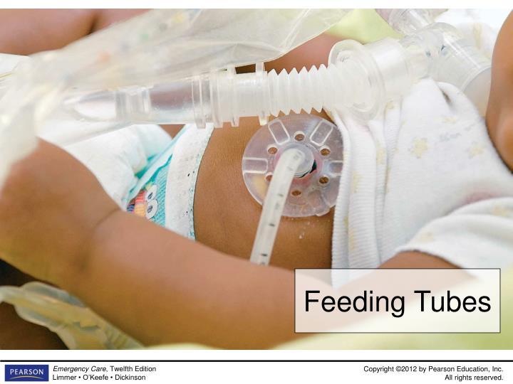 Feeding Tubes