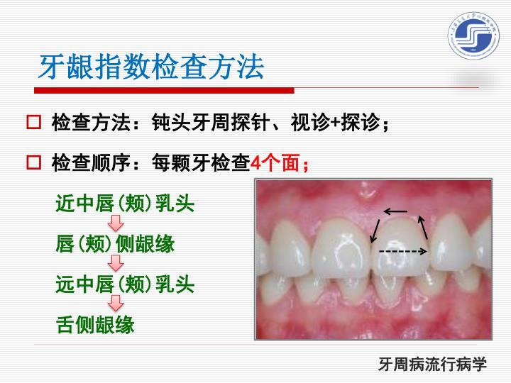 牙龈指数检查方法