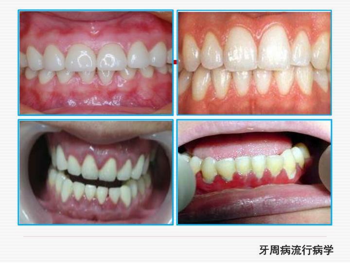 牙周病流行病学
