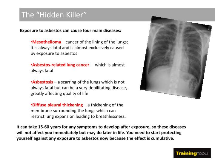 "The ""Hidden Killer"""