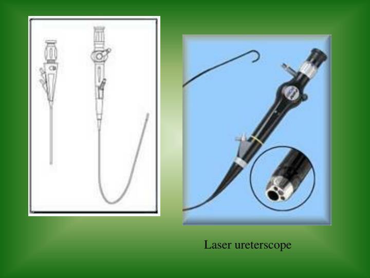 Laser ureterscope
