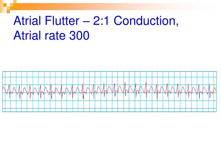 Images of Atrial Flutter 2:1 - industrious info