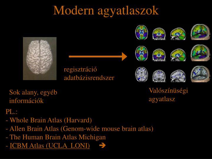 Modern agyatlaszok