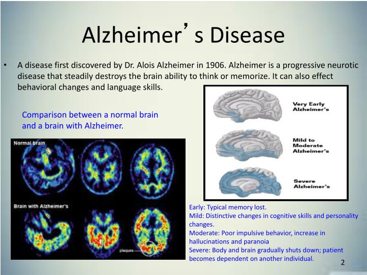 A disease first discovered by Dr. Alois Alzheimer in 1906. Alzheimer is a progressive neurotic disease that steadily destroys the brain ability to think or memorize. It can also effect behavioral changes and language skills.