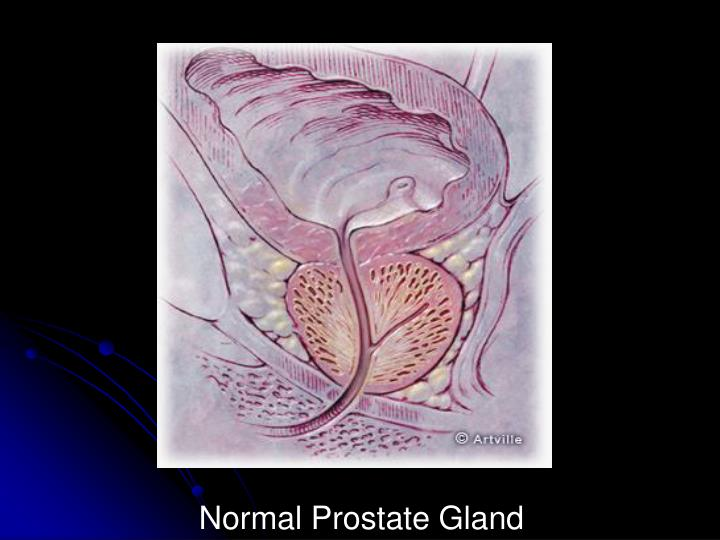 Normal Prostate Gland