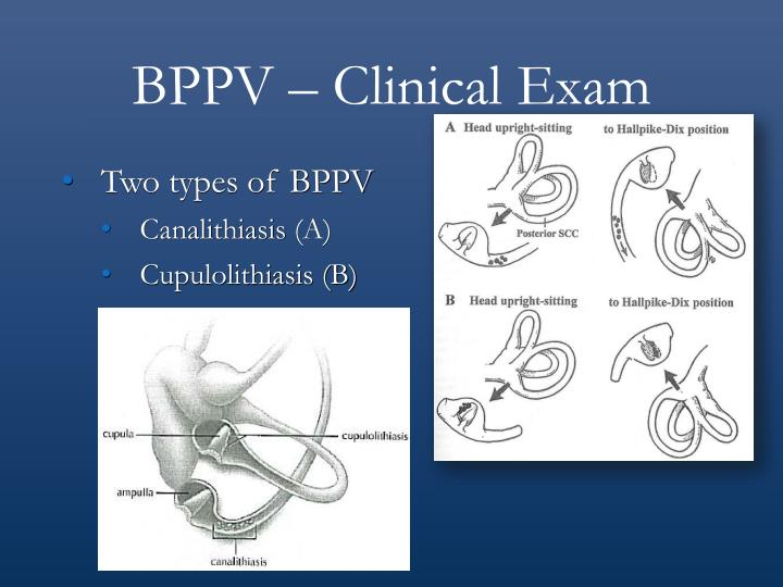 BPPV – Clinical Exam