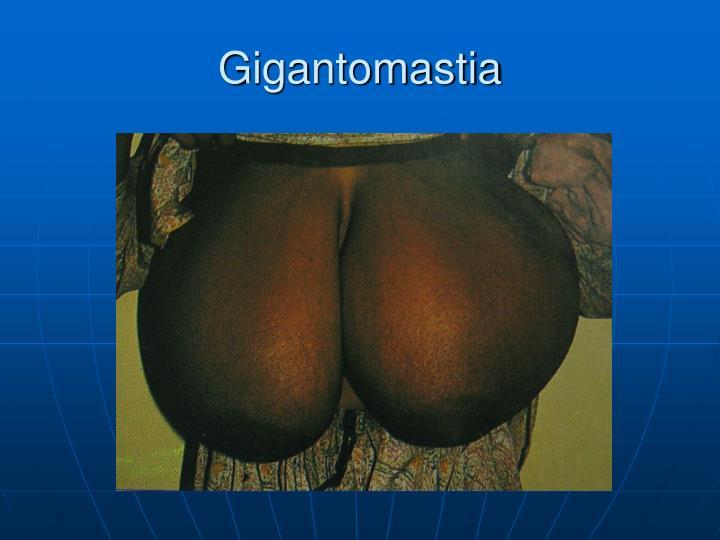 Gigantomastia