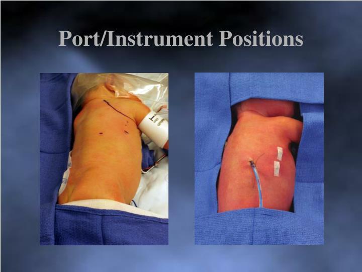 Port/Instrument Positions