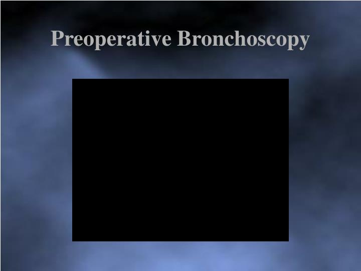 Preoperative Bronchoscopy