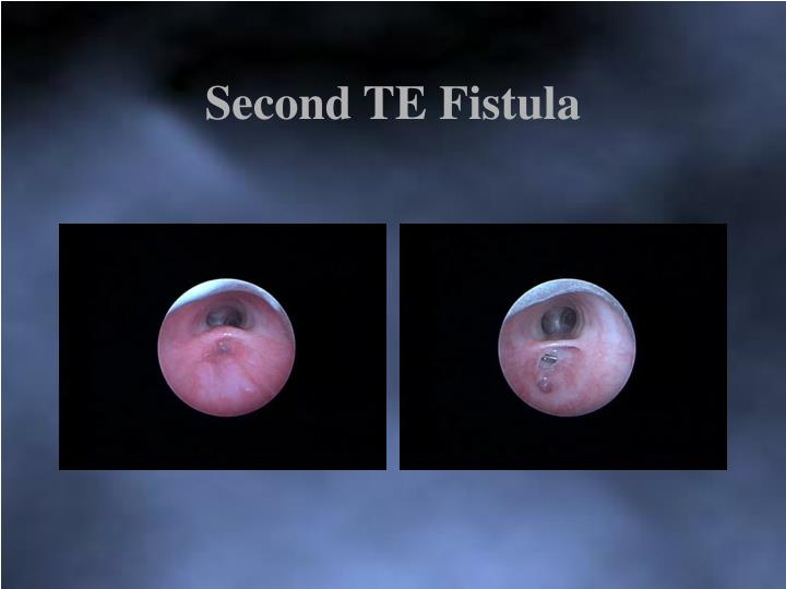 Second TE Fistula