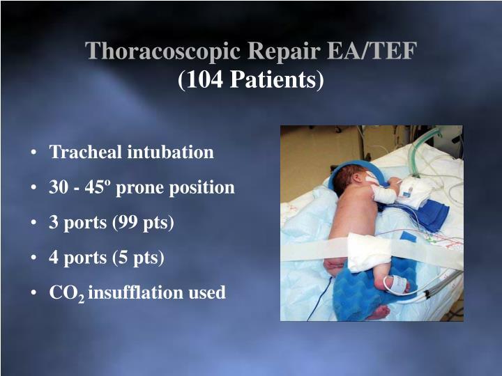 Thoracoscopic Repair EA/TEF