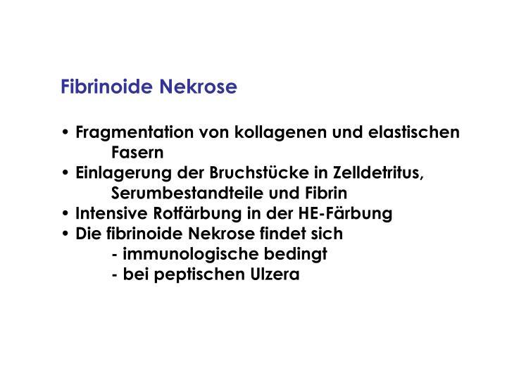 Fibrinoide Nekrose
