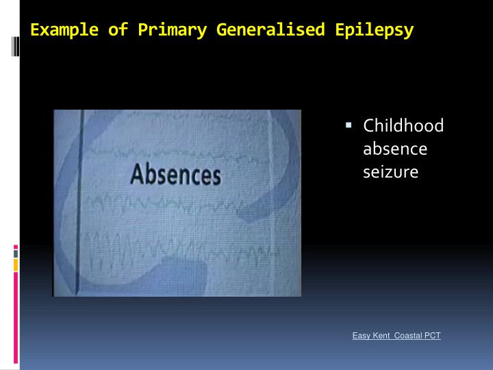 Example of Primary Generalised Epilepsy