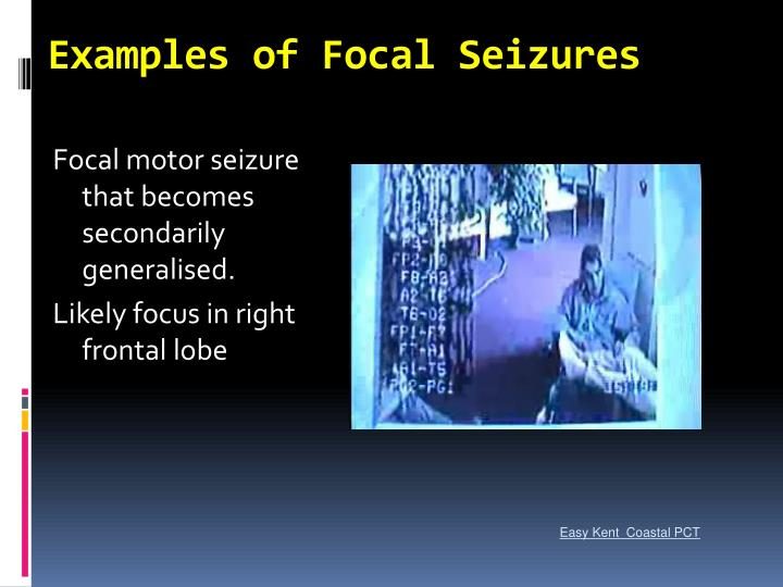 Examples of Focal Seizures
