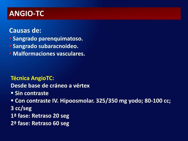 ANGIO-TC