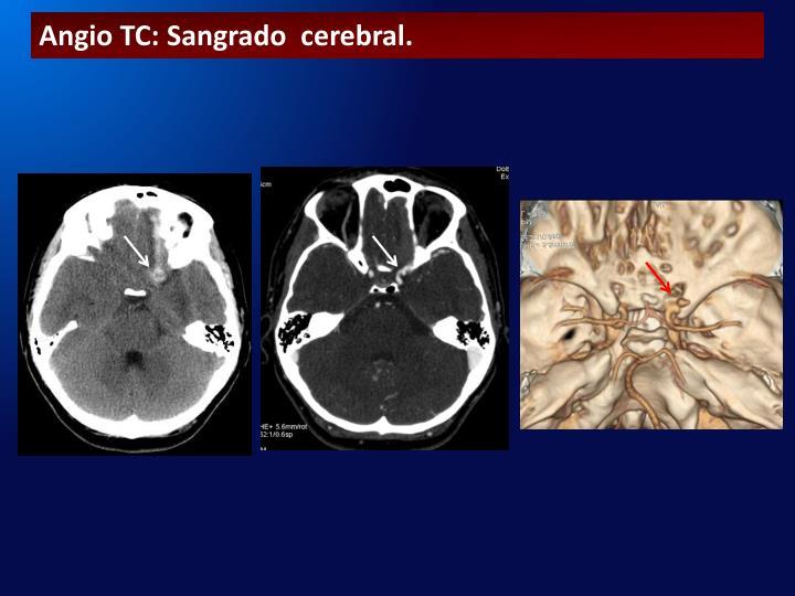 Angio TC: Sangrado  cerebral.