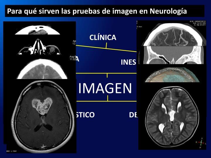 Para qué sirven las pruebas de imagen en Neurología
