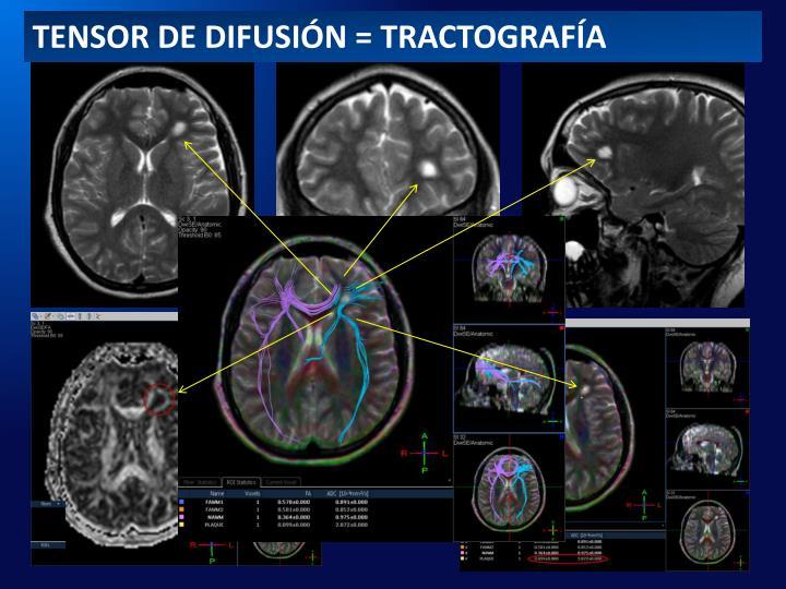 TENSOR DE DIFUSIÓN = TRACTOGRAFÍA